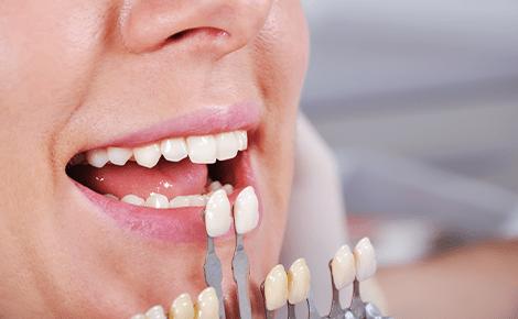 大きく歯を削る必要がないラミネートベニア