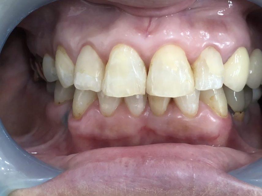症例5 ラミネートべニア(5本)治療前