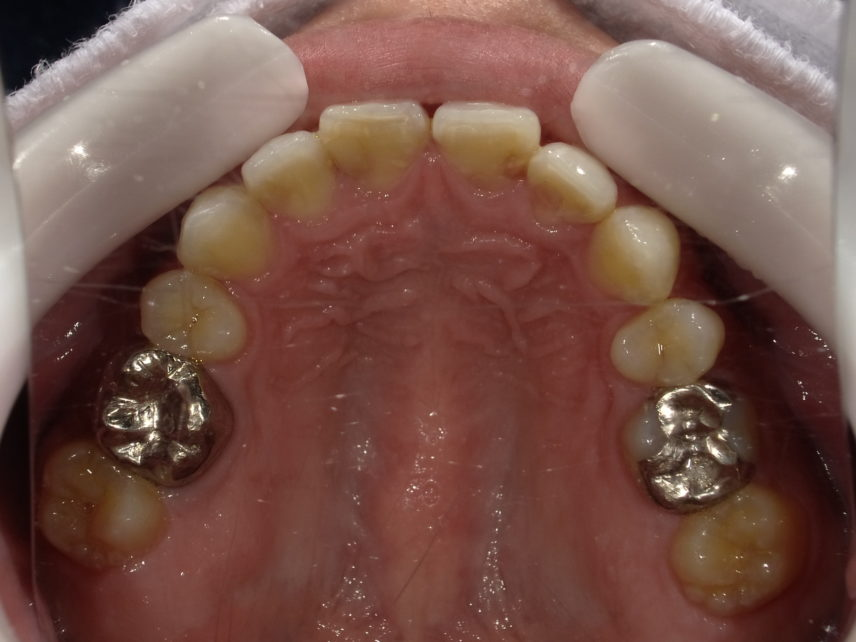 症例3 セラミッククラウン治療前