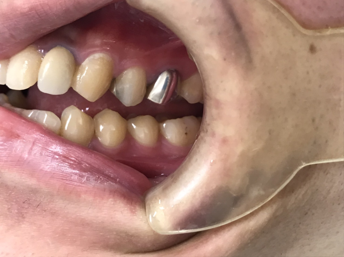 症例8 セラミッククラウン治療前