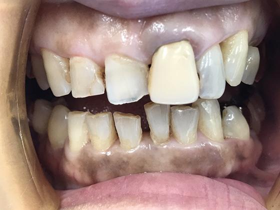 症例9 セラミッククラウン治療前