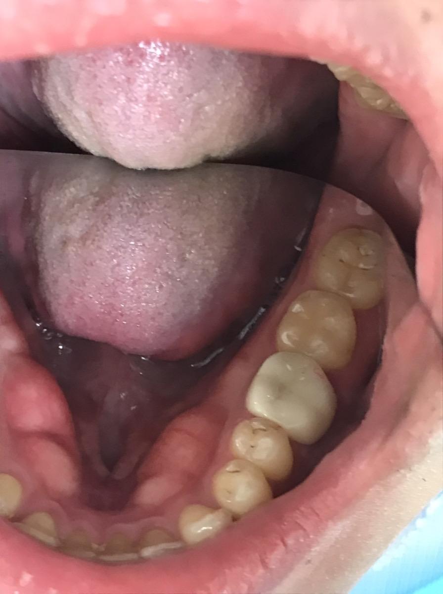 症例10 セラミッククラウン(1本)治療後