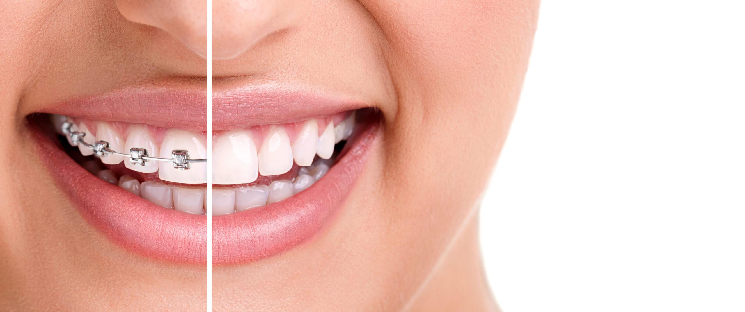 審美歯科の治療メニュー