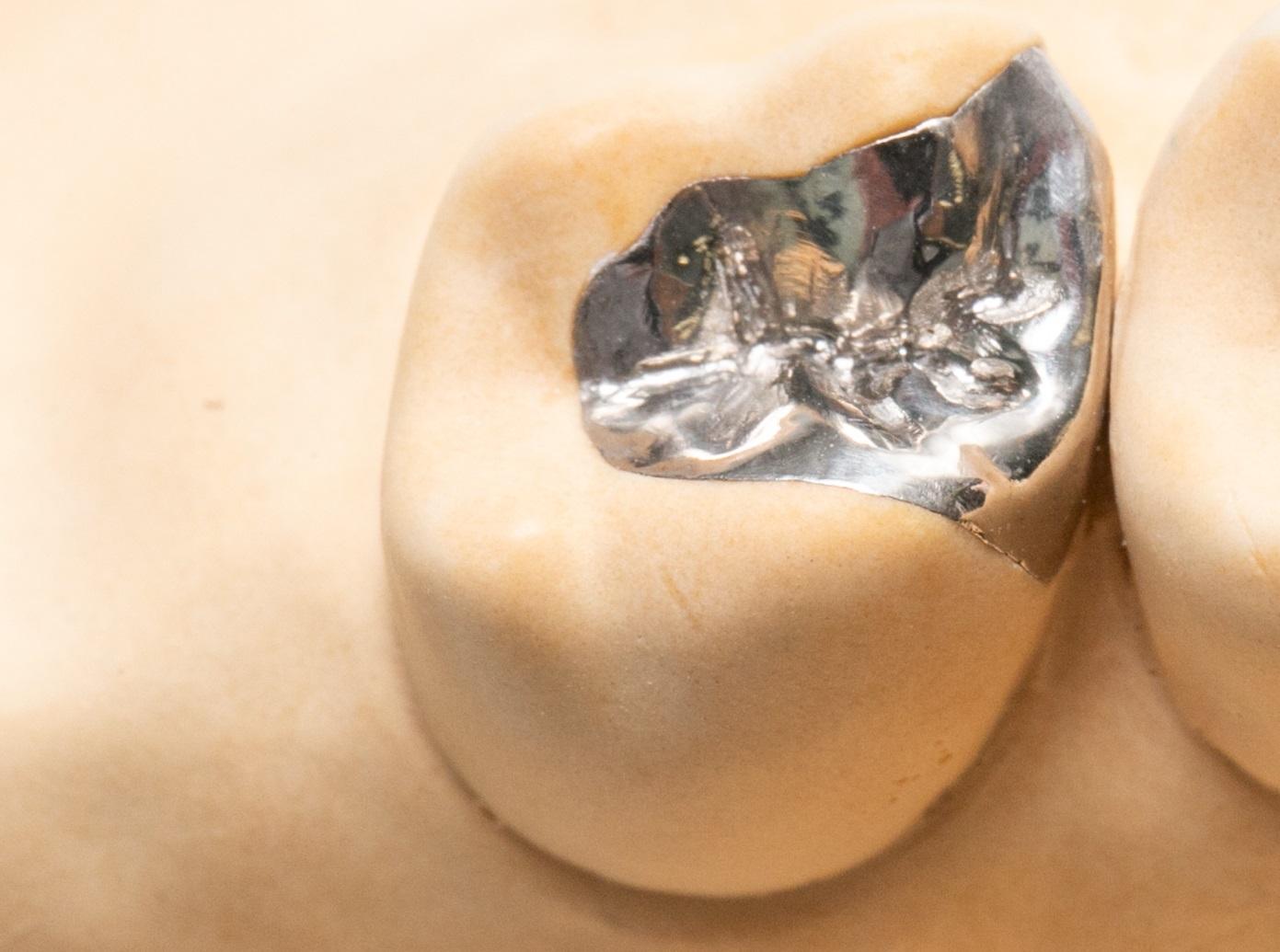 銀歯(金銀パラジウム合金)インレー