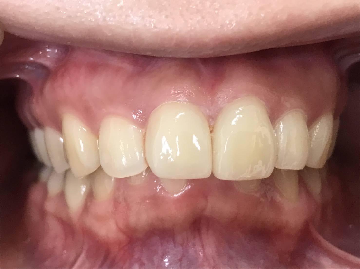 症例13 ラミネートべニア(2本)治療後