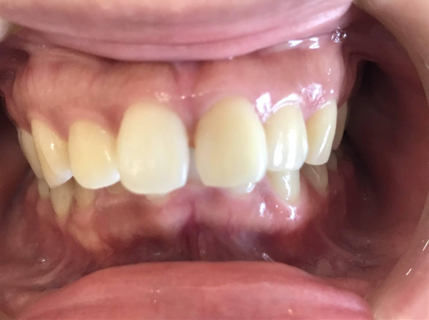 症例13 ラミネートべニア(2本)治療前