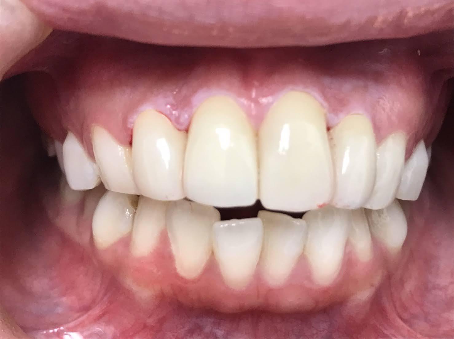 症例16 セラミッククラウン(4本)治療後