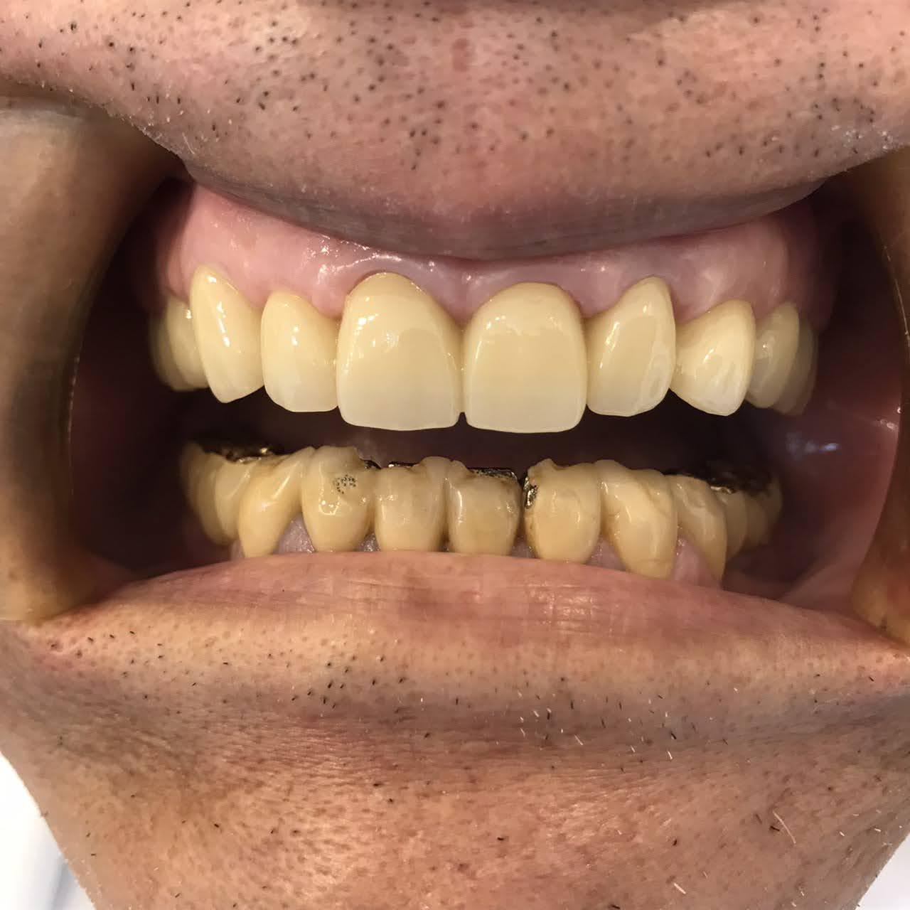症例15 セラミッククラウン(6本)治療後