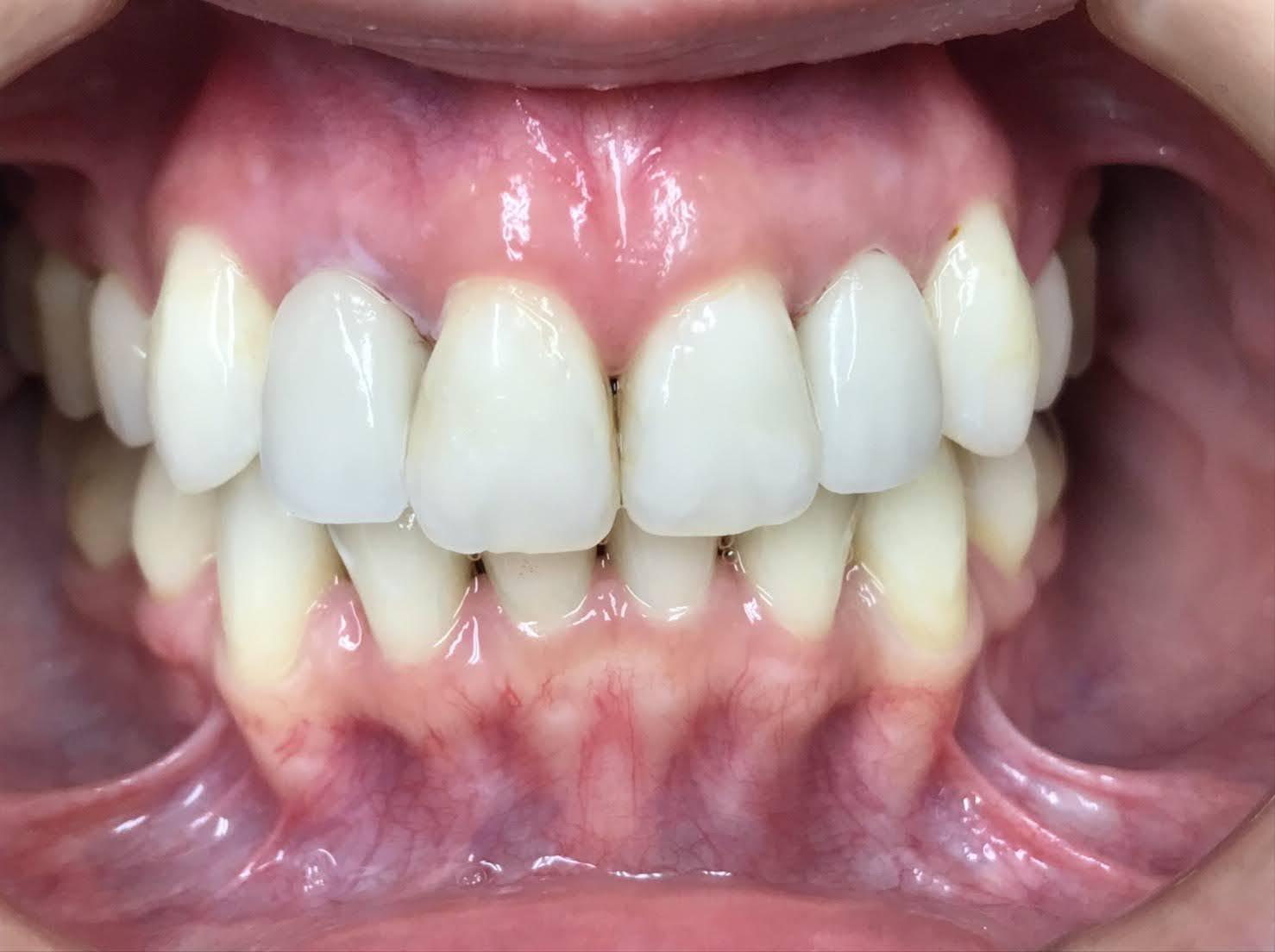 症例14 セラミッククラウン(2本)治療後