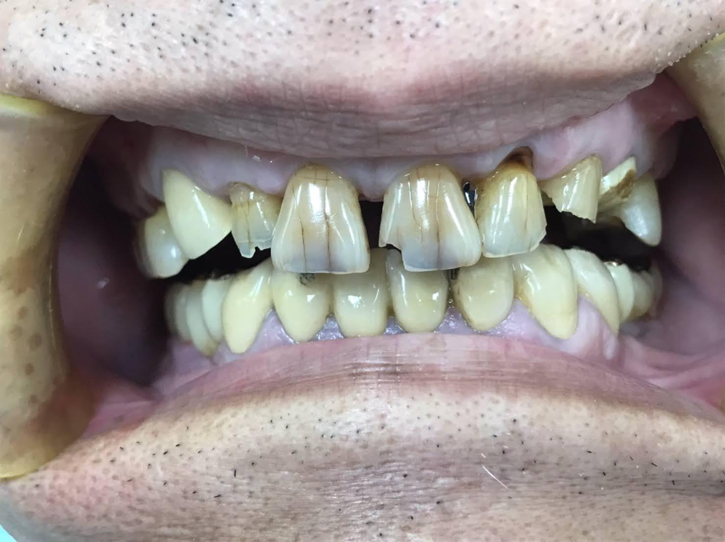 症例15 セラミッククラウン(6本)治療前